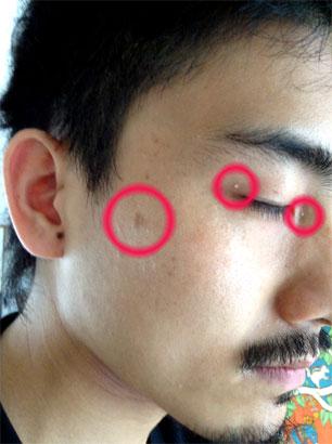 7月5日の目の周りの白い粒の状況